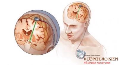 Phẫu thuật kích não sâu - cánh cửa cho người bệnh Parkinson trở lại cuộc sống