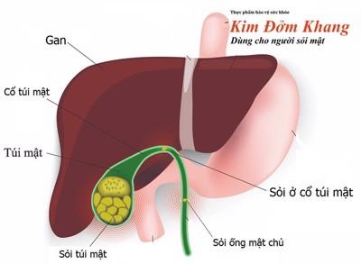 Tất tần tật các bệnh về túi mật & cách trị hiệu quả từ Đông Tây Y