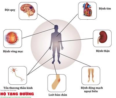 Mắc bệnh tiểu đường bao lâu thì xảy ra biến chứng?
