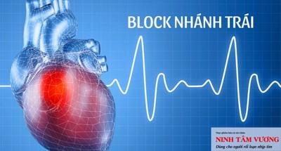 Block nhánh trái ở tim: Nguyên nhân, dấu hiệu và cách điều trị