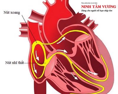 Tìm hiểu hội chứng nút xoang tim & cách điều trị