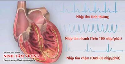 Bệnh rối loạn nhịp tim có nguy hiểm không? Cách điều trị hiệu quả