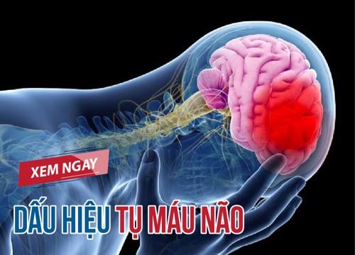 Xem ngay dấu hiệu tụ máu não và cách chữa trị bằng thảo dược!