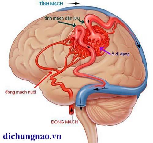 Nguyên nhân gây bệnh Alzheimer và phương pháp chẩn đoán. XEM NGAY