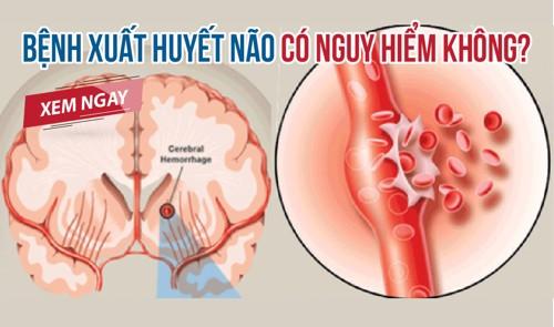 Xuất huyết não có nguy hiểm không? Việc dùng thảo dược giúp cải thiện tình trạng ra sao? Xem ngay!