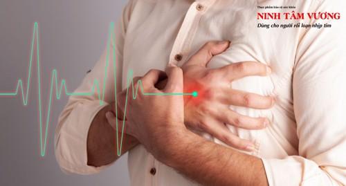 Hội chứng Brugada là gì? Có nguy hiểm không? Cách điều trị